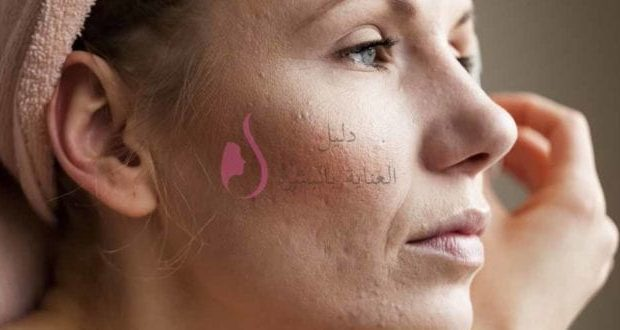 علاج حب الشباب في الوجه