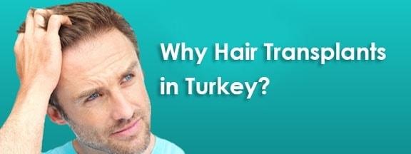 فضل مراكز زراعة الشعر في تركيا