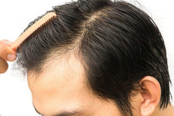 تكلفة زراعة الشعر في الامارات
