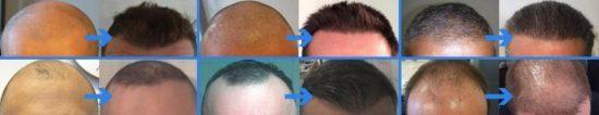 مركز زراعة الشعر بالرياض