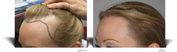 زراعة الشعر بالاقتطاف للنساء