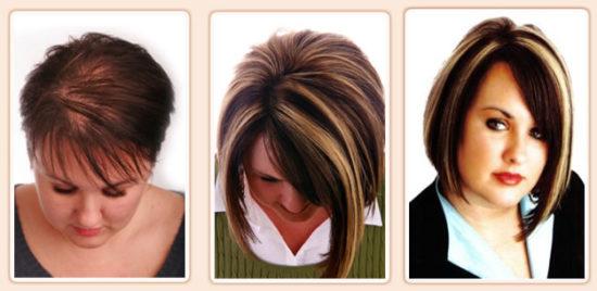 ما بعد زراعة الشعر