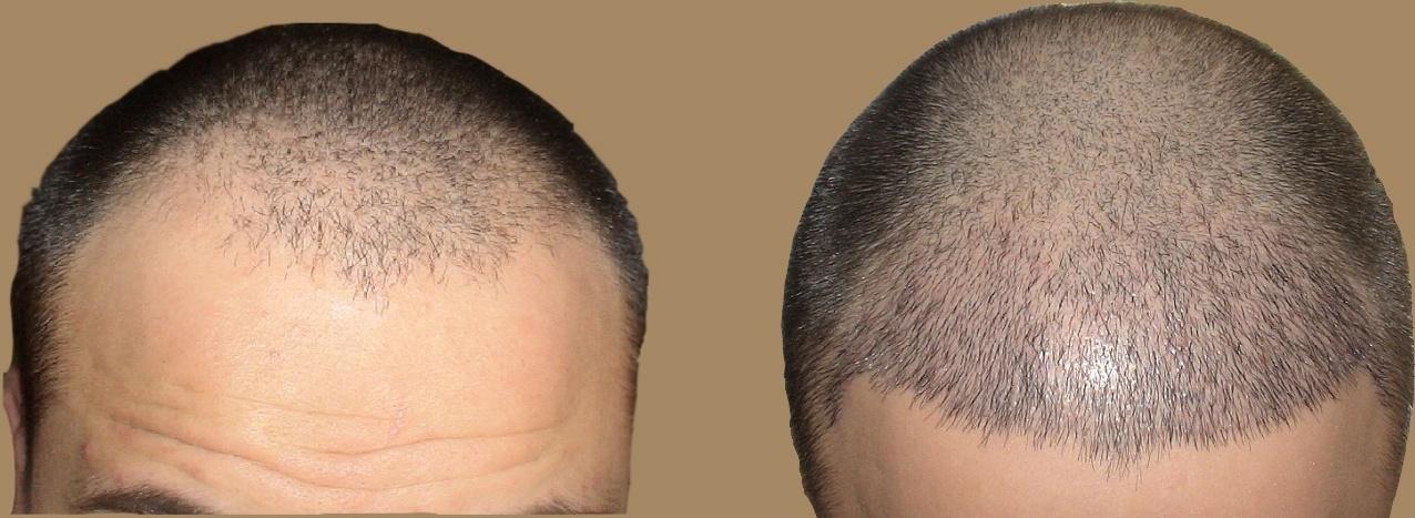 زراعة الشعر فى مصر مراكز مضمونة 100 التكاليف