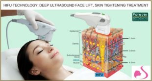 جهاز الهايفو الحديث لشد الوجه والجلد