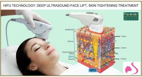 جهاز الهايفو لشد الوجه و البشره