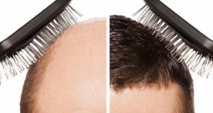 تكلفة زراعة الشعر في جدة