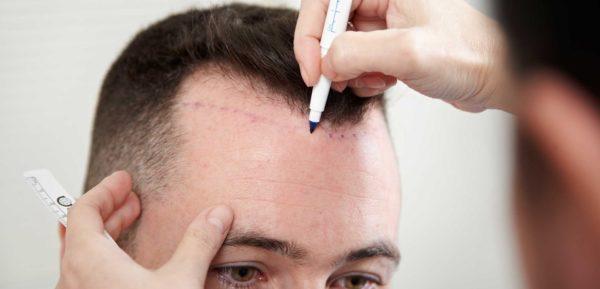 تكلفة زراعة الشعر في الاردن