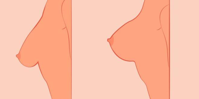 شدالثدي المترهل وتكبيره
