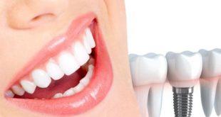 زراعة الأسنان فى تركيا