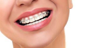 أبرز مشاكل تقويم الأسنان