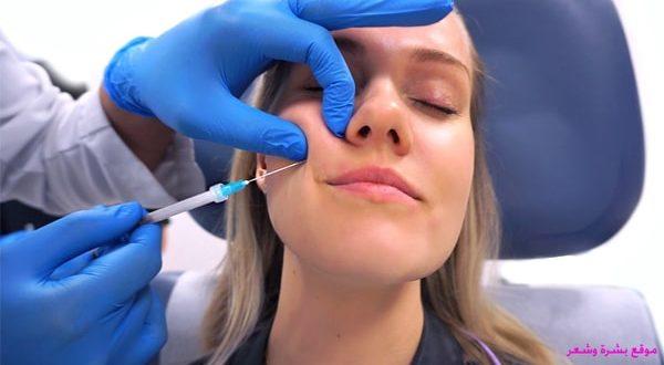 كيفية علاج تكتل الفيلر