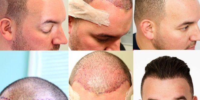 مراحل نمو الشعر بعد الزراعة بالصور