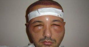 علاج انتفاخ الوجه بعد زراعة الشعر