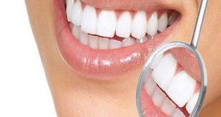 تجميل الأسنان في يوم واحد