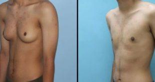 علاج التثدي عند الرجال في ساعات بدقة عالية