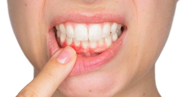 التهاب اللثة بعد زراعة الاسنان