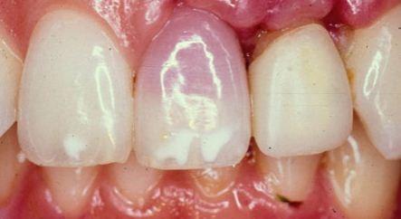 امراض الاسنان بالصور