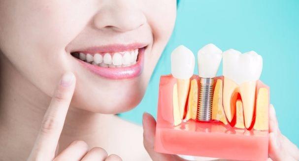هل زراعة الاسنان تسبب رائحه كريهه