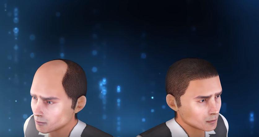 تجارب زراعة الشعر في مصر