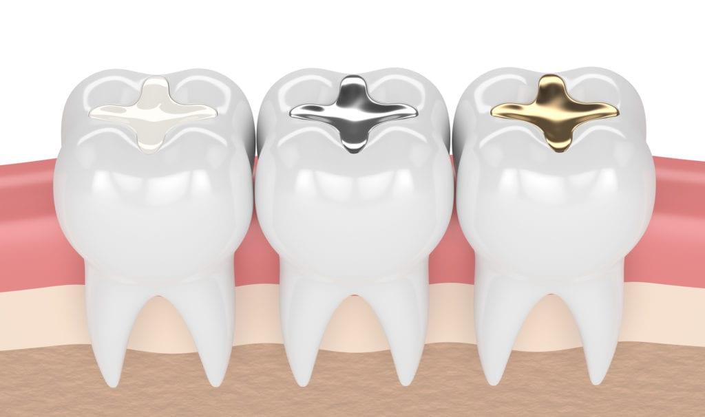 انواع تلبيس الاسنان التجميلي واسعارها