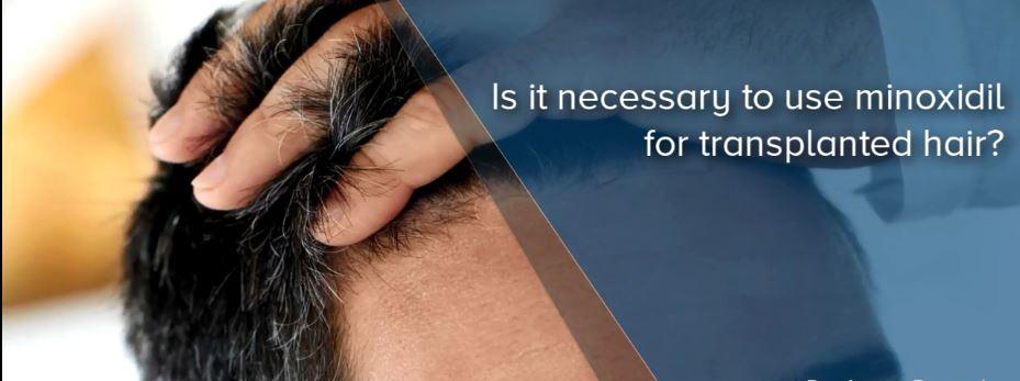المينوكسيديل بعد زراعة الشعر