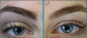 تكلفة زراعة شعر الحواجب في مصر
