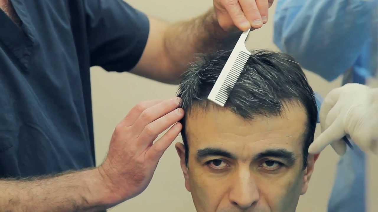 هل زراعة الشعر تسبب السرطان؟